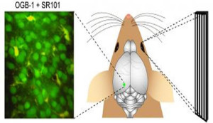 neuron-alzheimers-disease