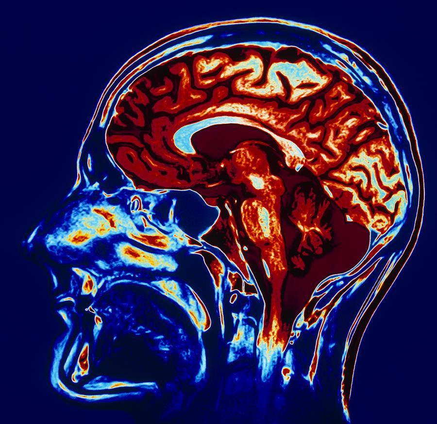 coloured-mri-scan-of-brain-in-sagittal-se-geoff-tompkinson - Neurodope